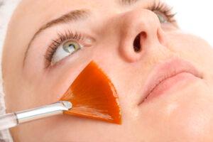 Brush applying chemical facial peel