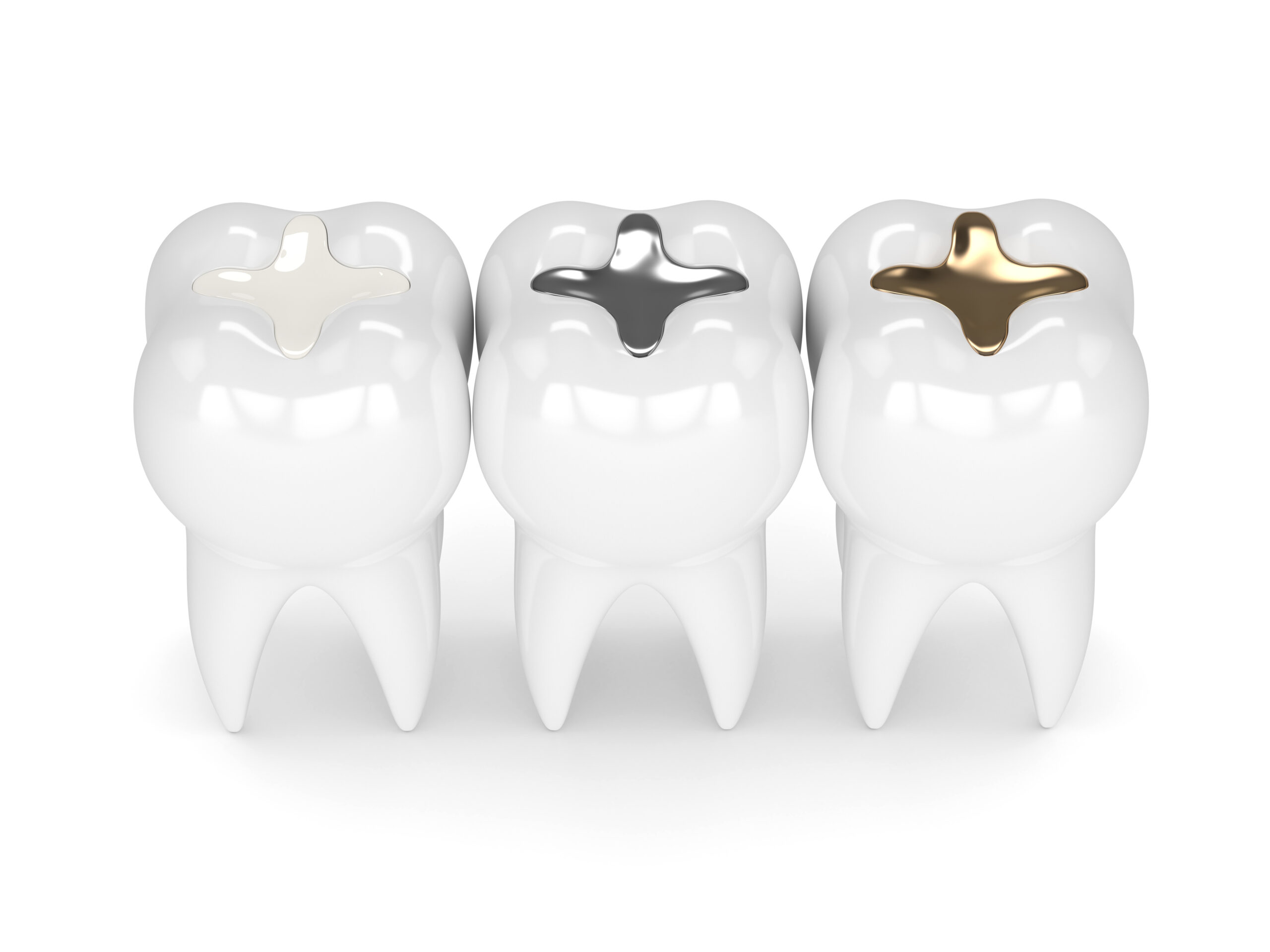 Can you use Advanced TRS with metal fillings?